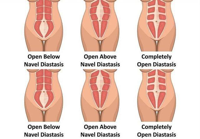 Verschillende soorten diastasis